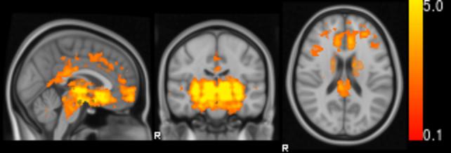 Imagen de la muestra de la actividad cerebral mientras se habla