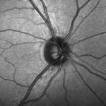 enfermedades oftalmológicas